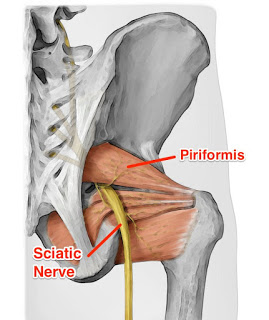 Piriformis Syndrome – A Pain In The Bum