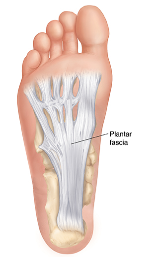 Plantar Fasciitis – Don't Sell Your Sole For Fashionable Footware
